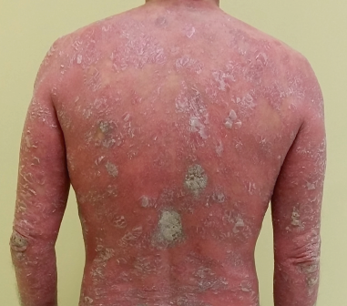 arthrite spongiforme