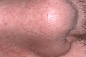 Efficacité du tacrolimus 0,1 % en traitement d'entretien de la dermite séborrhéique
