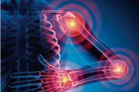 Traitement du rhumatisme psoriasique