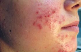 La dermite séborrhéique : du neuf en physiopathologie et en ...