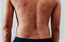 Baricitinib en association avec les dermocorticoïdes dans la dermatite atopique modérée à sévère