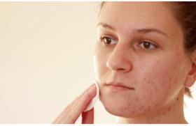 Comment traiter l'acné fulminans