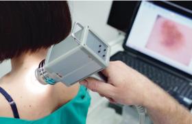 Cancers cutanés : des outils diagnostiques de plus en plus performants