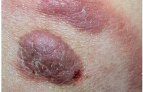 Actualités dans la prise en charge des lymphomes T cutanés