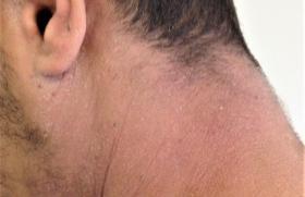 Dermatite atopique : avis positif de l'EMA pour le tralokinumab