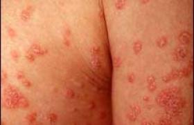 Psoriasis : le bimekizumab agit vite et longtemps