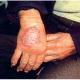 La tuberculose cutanée, toujours un problème d'actualité – Ne pas méconnaître les formes cliniques