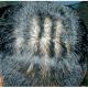 La pachydermie occipitale vorticellée du cuir chevelu (cutis verticis gyrata)