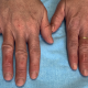 Manifestations dermatologiques de la Covid-19
