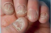 L'ongle, une mystérieuse boule de cristal ? –  De l'onychomancie à la dermatologie, peut-on vraiment lire sur les ongles ?