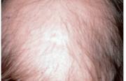 Quand et comment explorer une alopécie androgénique ?